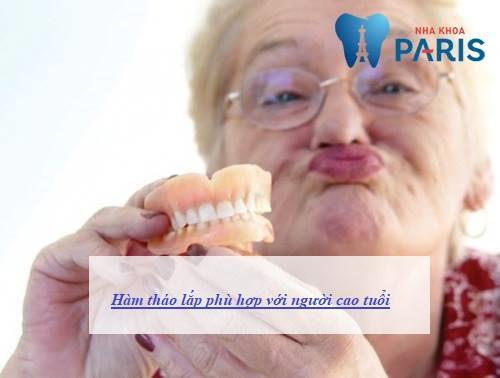 chỉnh răng bằng hàm tháo lắp có tốt không 12