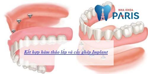chỉnh răng bằng hàm tháo lắp có tốt không 13