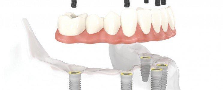 Bảng giá hàm răng giả tháo lắp bao nhiêu tiền là chuẩn và chính xác 2