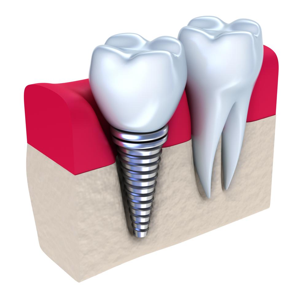 Làm răng giả tháo lắp - 11 mẹo chăm sóc CỰC KỲ hiệu quả2