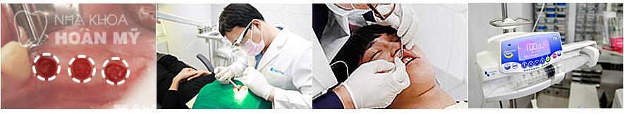 Tại nha khoa Hoàn Mỹ quy trình làm răng implant như thế nào ?