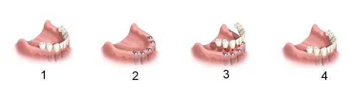 Làm răng giả cố định cho trường hợp mất răng toàn hàm 2