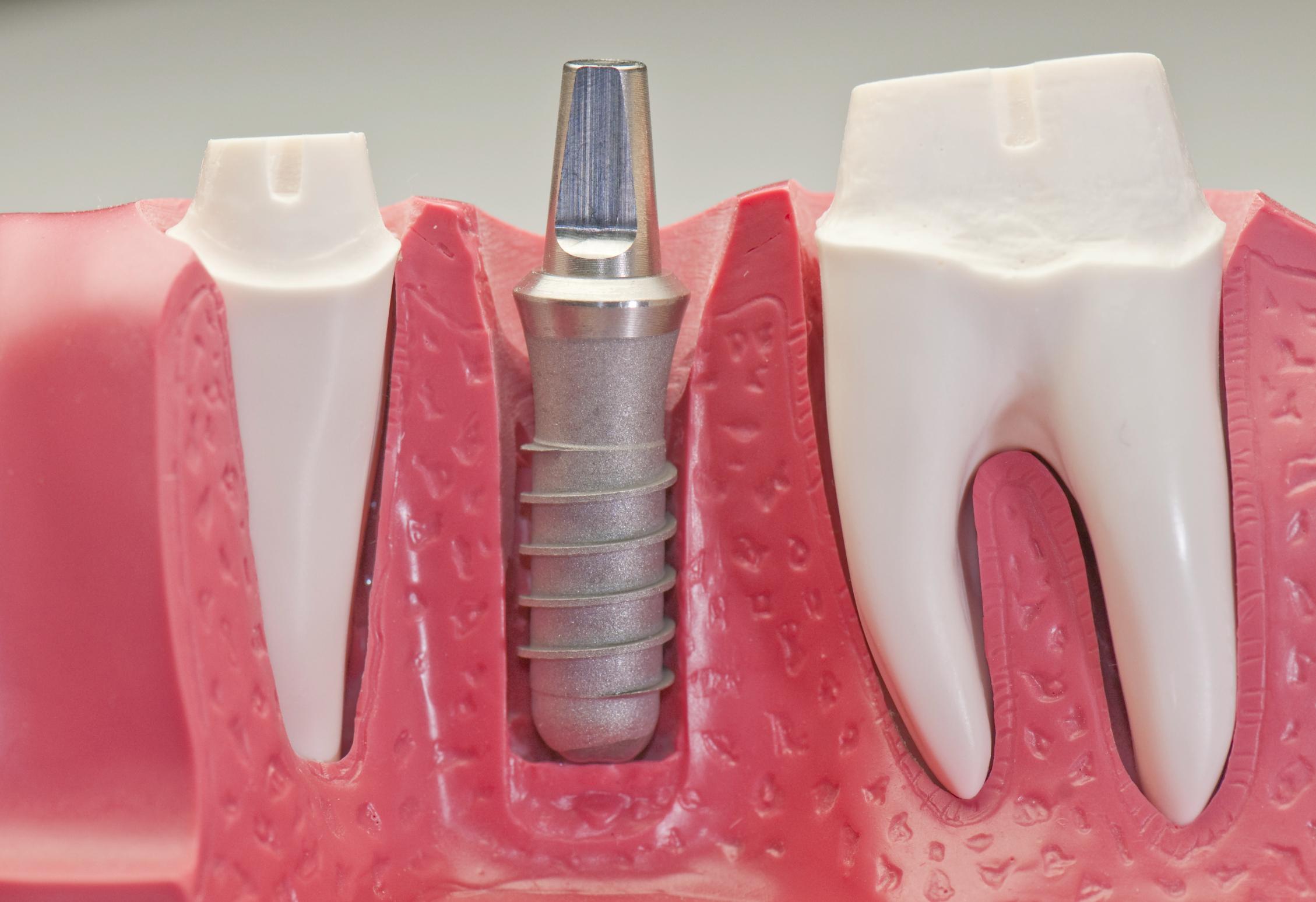 Trường hợp mất răng toàn hàm có nên làm răng giả cố định không ?