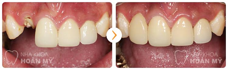 Trồng răng giả có ảnh hưởng gì tới răng kế cận không?