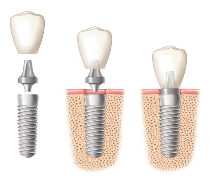 Các phương pháp trồng răng giả tốt nhất hiện nay