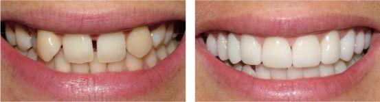 Cách khắc phục răng cửa bị thưa chỉ trong thời gian ngắn bạn biết chưa 1