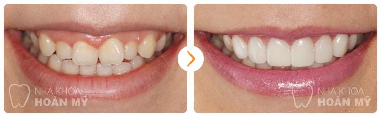 Tại nha khoa Paris trồng răng sứ giá bao nhiêu tiền?