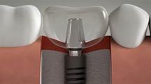 Trồng răng 2