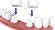 Trồng răng 6