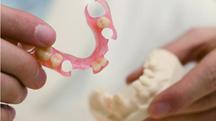 Trồng răng 8