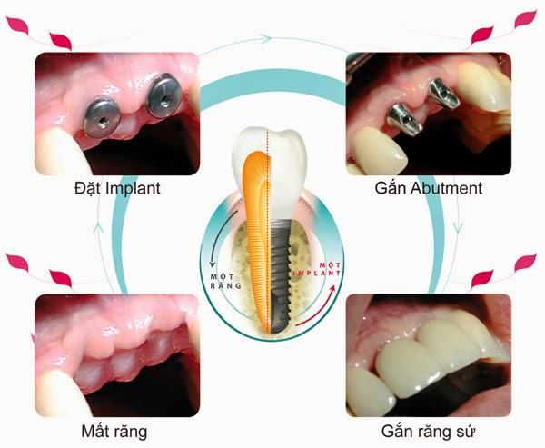 Ghép răng Implant kết hợp phẫu thuật nâng xoang hàm 4