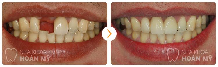 Làm cầu răng mất mấy ngày thì hoàn tất phục hình?