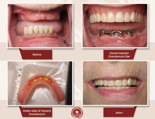Hướng phục hình phù hợp nhất khi trồng nhiều răng mất 2