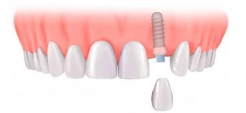 Những trường hợp có thể ghép răng Implant nhanh nhất 2