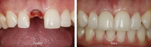 Làm răng Implant ở đâu tốt và uy tín nhất Hà Nội? 3
