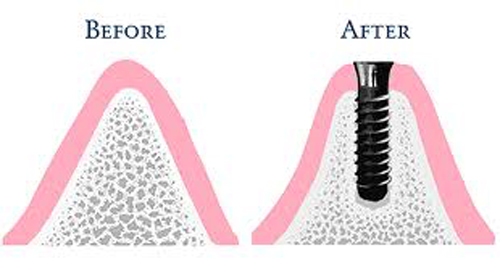 Chỉ định áp dụng để trồng răng khi bị tiêu xương 2