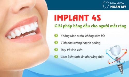 Chỉ định áp dụng để trồng răng khi bị tiêu xương 3