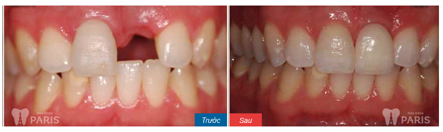 dental-implants-before-and-after1