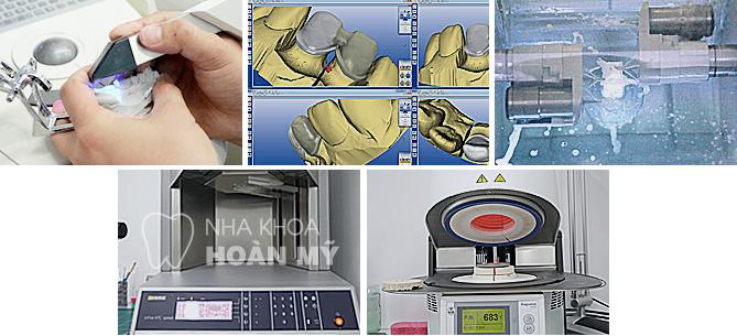 Hơn 7 Triệu ca cấy ghép Implant Hàn Quốc trên 60 quốc gia 7
