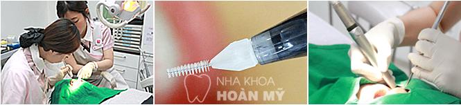 Hơn 7 Triệu ca cấy ghép Implant Hàn Quốc trên 60 quốc gia 10