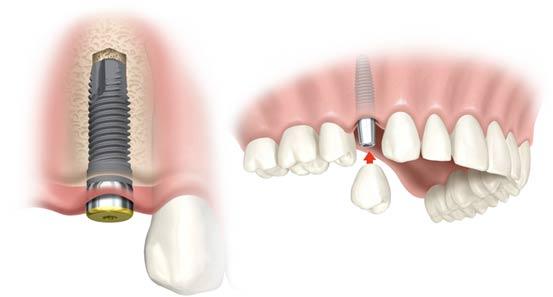 Cho em hỏi quy trình trồng răng implant như thế nào ?