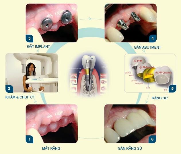 Quy trình trồng răng như thế nào?