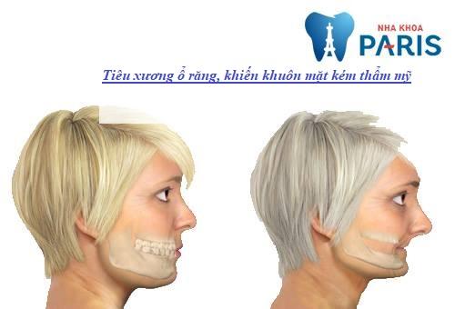 trồng răng sau khi mất răng bao lâu là hợp lý nhất1