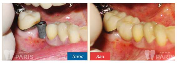 Tham khảo giá trồng răng giả hết bao nhiêu tiền