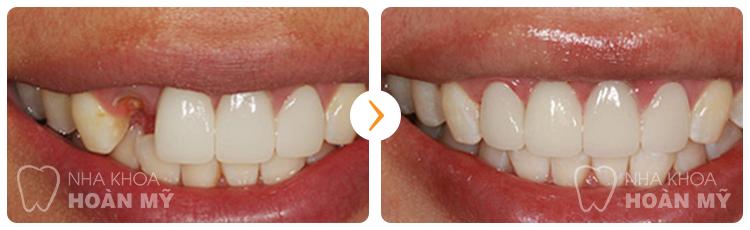 Thưa bác sĩ phương pháp trồng răng giả được thực hiện  như thế nào ?