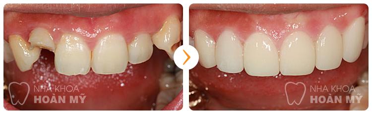 Tại nha khoa Hoàn Mỹ làm răng sứ có giá bao nhiêu ?