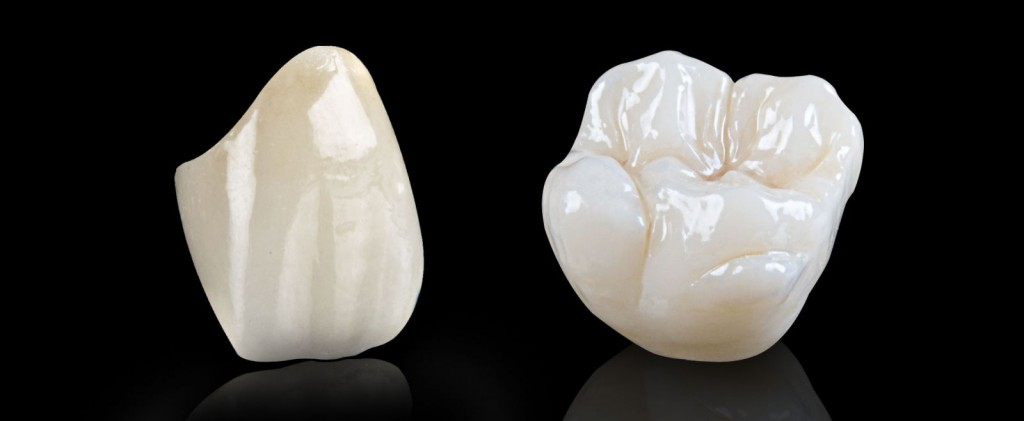 Nên trồng răng giả loại nào tốt dựa vào loại răng sứ bạn chọn