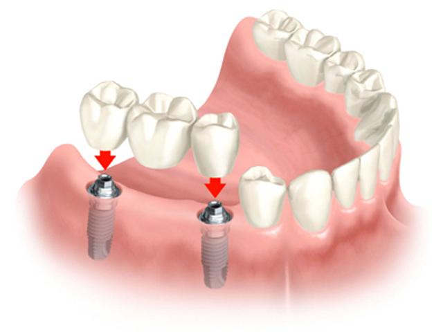 4 điều cần lưu ý khi làm cầu răng sứ