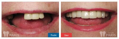 Phục hình khi mất 3 răng thì nên sử dụng phương pháp nào?