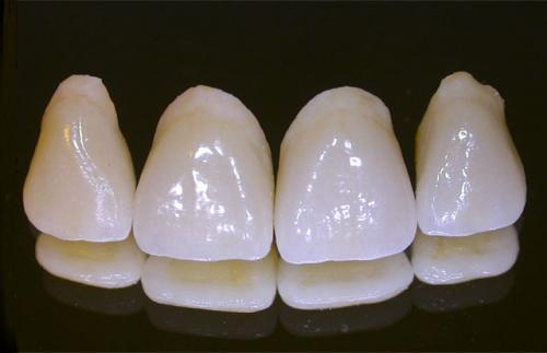 Quy trình làm răng sứ cercon như thế nào