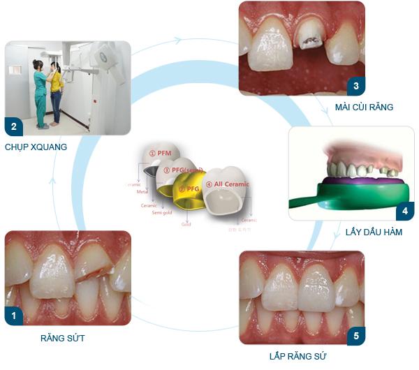 Răng sứ cercon & Quy trình làm răng sứ cercon Ưu Việt nhất 2