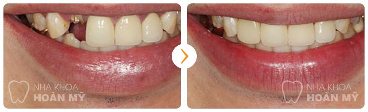 So sánh hai phương pháp trồng răng Implant và cầu răng 3