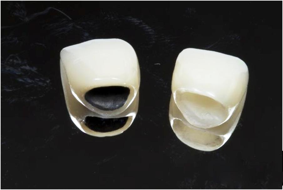 Trồng răng giả loại nào tốt và đảm bảo bền chắc nhất? 2