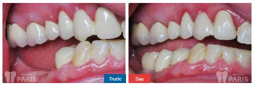 Mất 2 răng hàm có làm cầu răng được không?