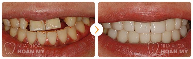 Làm cầu răng khi mất nhiều răng có tốt hay không?
