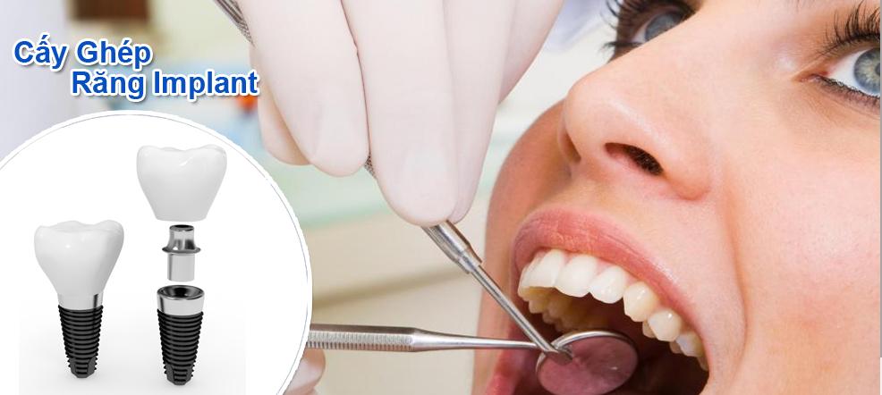 Kĩ thuật trồng răng hiện đại nhất hiện nay