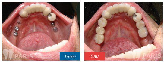 Cách phục hồi răng mất toàn hàm đảm bảo nhất?
