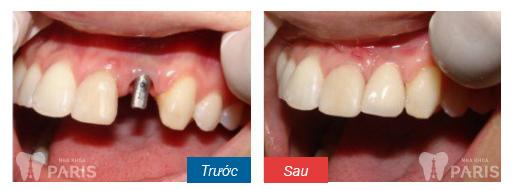 Có những giải pháp nào khắc phục khi mất nhiều răng? 6