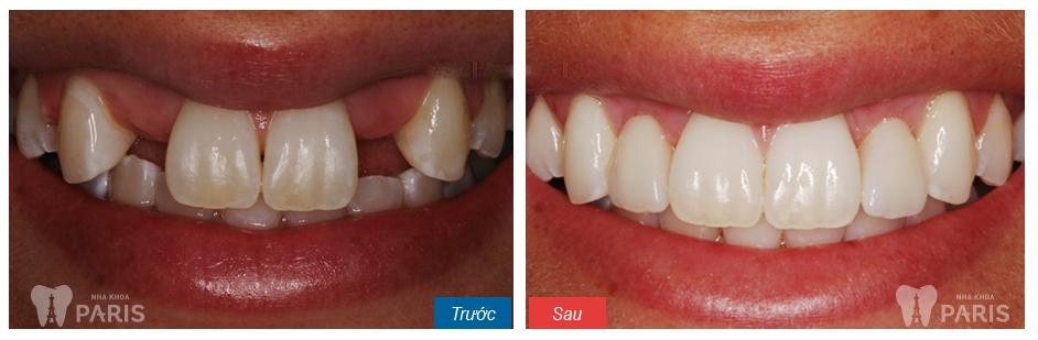 Nên lựa chọn loại răng sứ nào để phục hình cho răng cửa?