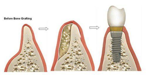 Tại sao cần ghép xương khi làm răng implant