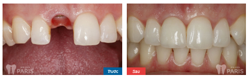 Phân biệt sự khác nhau giữa làm cầu răng và cấy ghép implant 7
