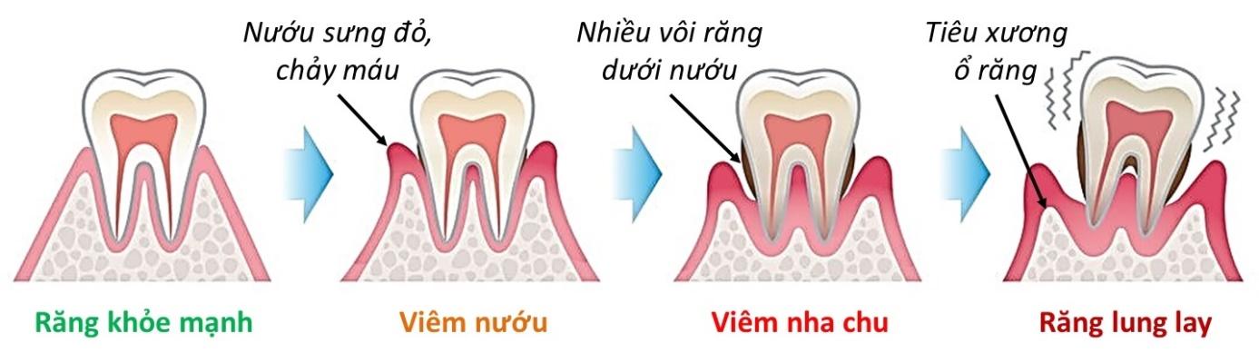 Răng lung lay phải làm sao để điều trị tốt nhất?