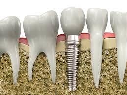 Trồng răng giả vĩnh viễn bằng cấy ghép Implant