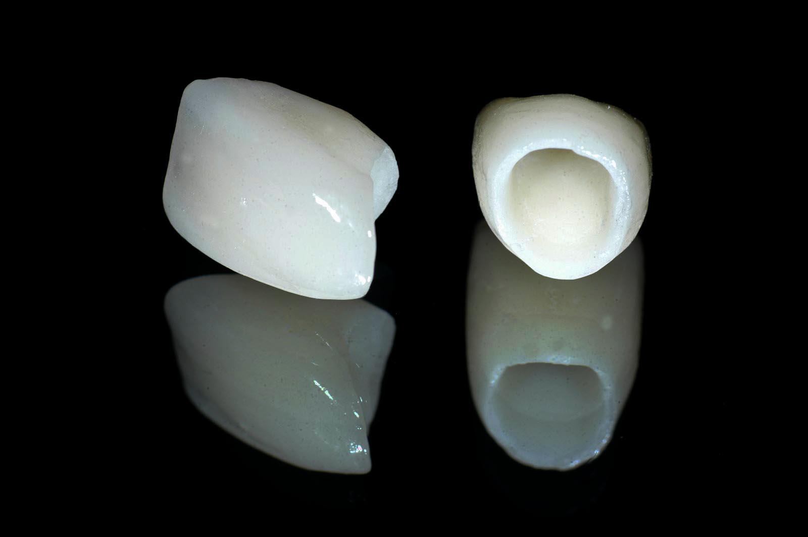 Trồng răng giả loại nào tốt nhất hiện nay?2
