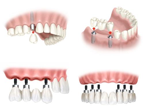 Trồng răng giả hết bao nhiêu tiền để bền lâu?1