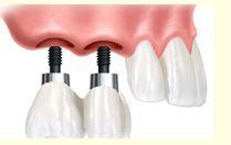 Chi phí trồng răng giả implant tại Paris là bao nhiêu?